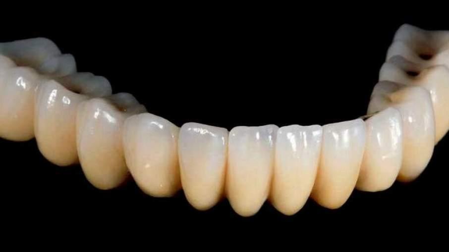 두바이 치과 당국, 3D 프린팅 치아 출력을 2017년에 시작예정